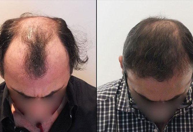 bestfue-hair-transplantaion