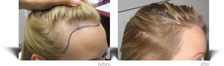 hair transplant women