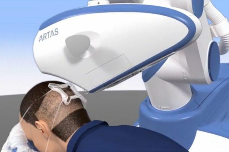 ARTAS-Robot-compressor